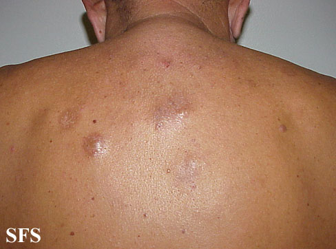 lymphocytoma cutis(lymphocytoma_cutis8.jpg)