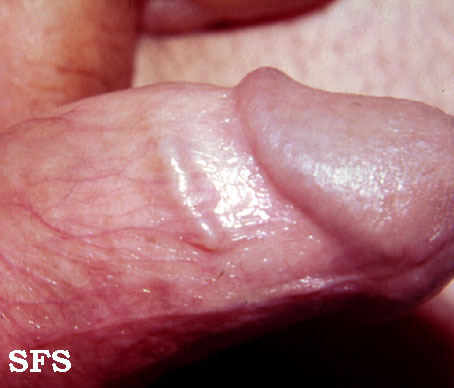 lymphangitis of the penis