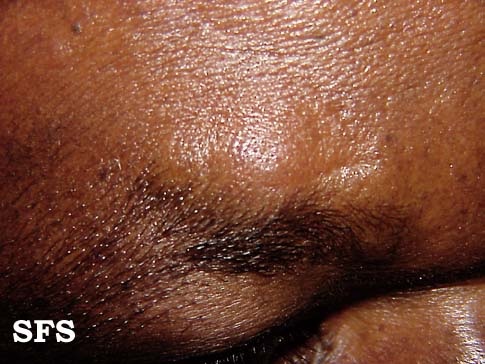 lymphocytic infiltration of the skin