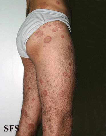 eosinophilic annular erythema(eosinophilic_annular_erythema8.jpg)
