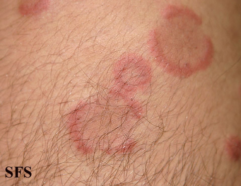 eosinophilic annular erythema(eosinophilic_annular_erythema9.jpg)