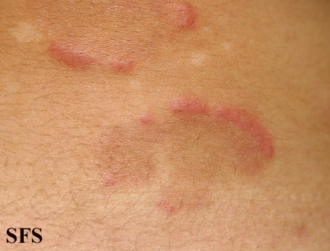 eosinophilic annular erythema(eosinophilic_annular_erythema15.jpg)