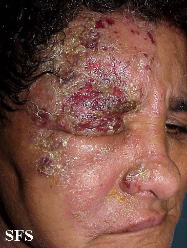 herpes zoster(herpes_zoster15.jpg)