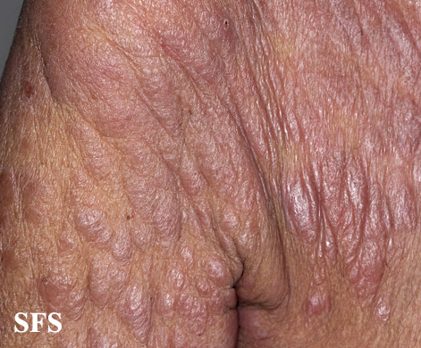 mycosis fungoides(mycosis_fungoides43.jpg)