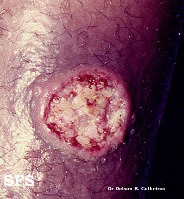 leishmaniasis-cutaneous leishmaniasis(leishmaniasis-cutaneous_leishmaniasis8.jpg)