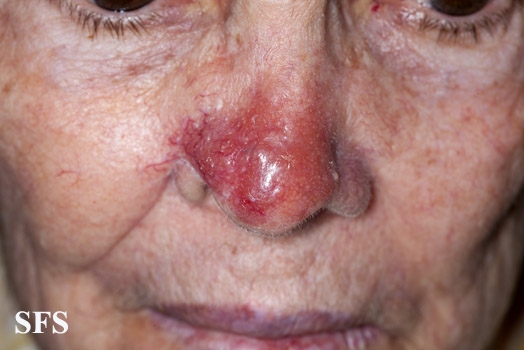 leishmaniasis-cutaneous leishmaniasis(leishmaniasis-cutaneous_leishmaniasis15.jpg)