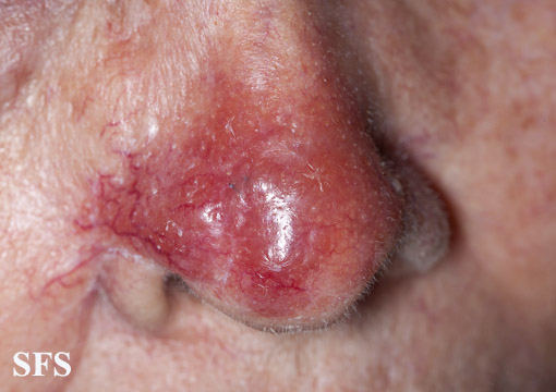 leishmaniasis-cutaneous leishmaniasis(leishmaniasis-cutaneous_leishmaniasis19.jpg)