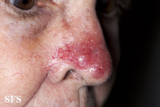 leishmaniasis-cutaneous leishmaniasis(leishmaniasis-cutaneous_leishmaniasis17.jpg)