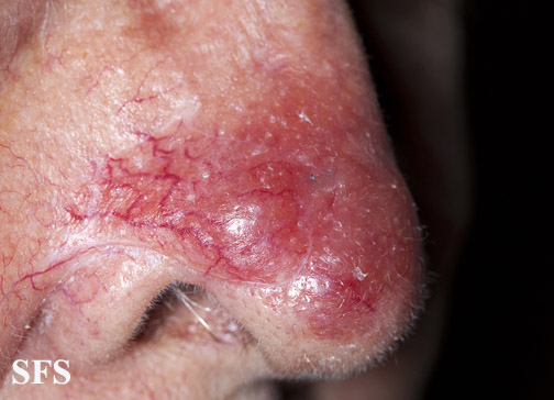 leishmaniasis-cutaneous leishmaniasis(leishmaniasis-cutaneous_leishmaniasis18.jpg)