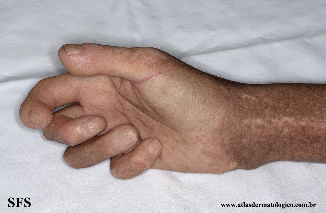 systemic_sclerosis(systemic_sclerosis8.jpg)