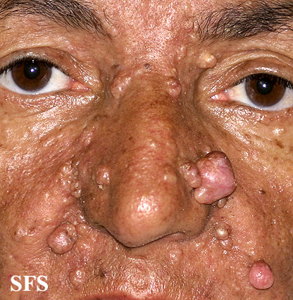 nevoid basal cell carcinoma syndrome