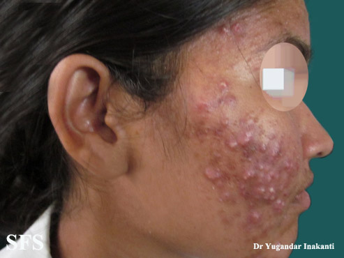 acne-topical corticosteroids(acne-topical%20corticosteroids1.jpg)