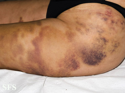 painful bruising syndrome(painful_bruising_syndrome3.jpg)