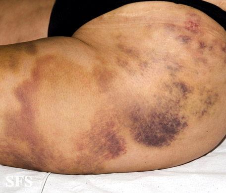 painful bruising syndrome(painful_bruising_syndrome4.jpg)
