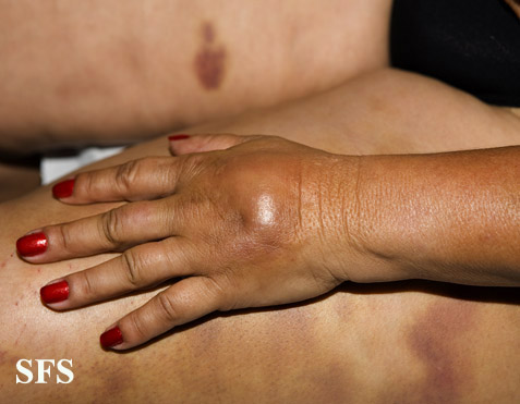 painful bruising syndrome(painful_bruising_syndrome12.jpg)