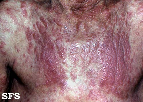 mycosis fungoides(mycosis_fungoide2.jpg)