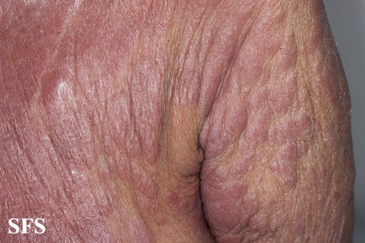 mycosis fungoides(mycosis_fungoides44.jpg)