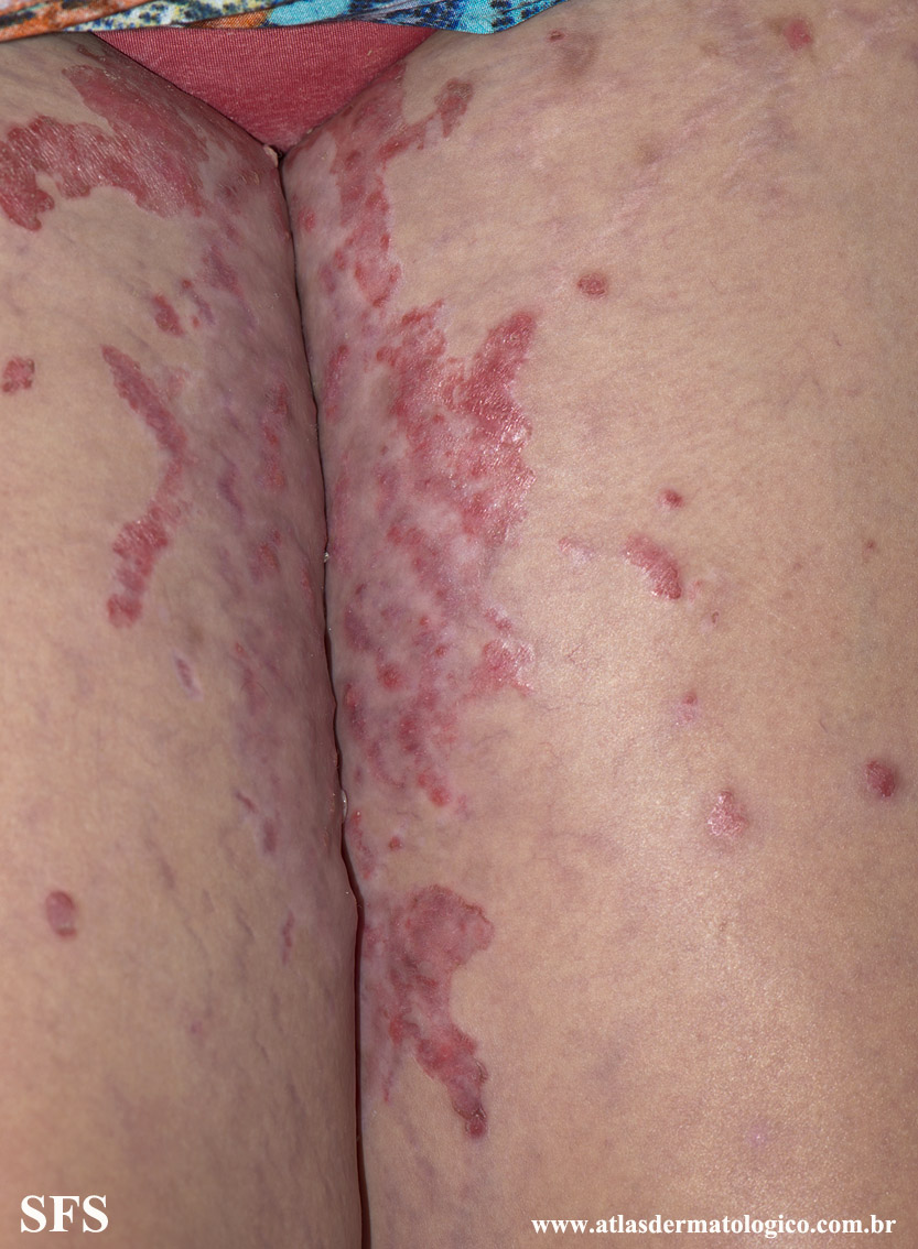 acrodermatitis enteropathica(acrodermatitis_enteropathica47.jpg)