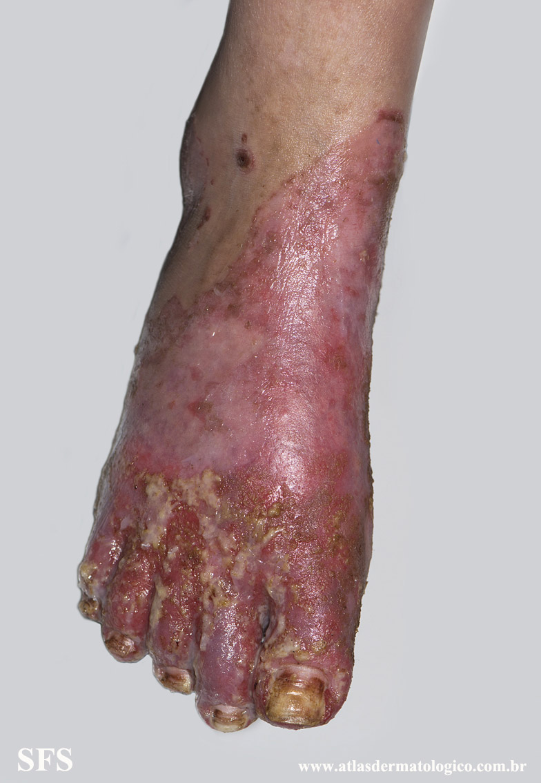 acrodermatitis enteropathica(acrodermatitis_enteropathica53.jpg)