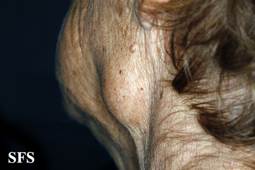 adenocarcinoma-in the submandibular salivary glands