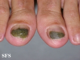 green nails-pseudomonas aeruginosa