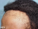 traction-traumatic alopecia