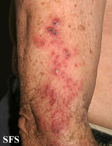 herpes zoster(herpes_zoster17.jpg)