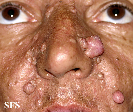 nevoid basal cell carcinoma syndrome(nevoid_basal_cell_carcinoma_syndrome14.jpg)