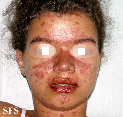 lupus erythematosus-systemic