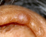 chondrodermatitis nodularis chronica helicis