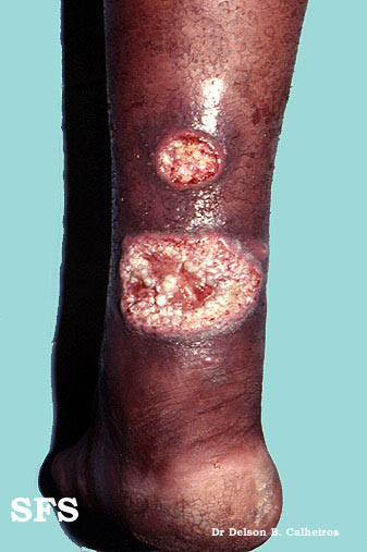 leishmaniasis-cutaneous leishmaniasis(leishmaniasis-cutaneous_leishmaniasis3.jpg)