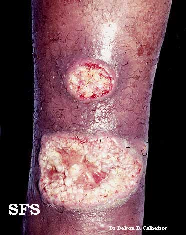 leishmaniasis-cutaneous leishmaniasis(leishmaniasis-cutaneous_leishmaniasis4.jpg)