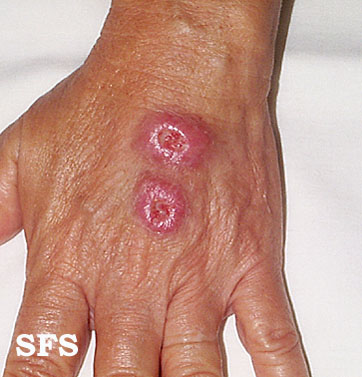 leishmaniasis-cutaneous leishmaniasis(leishmaniasis-cutaneous_leishmaniasis6.jpg)