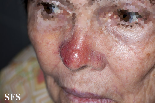 leishmaniasis-cutaneous leishmaniasis(leishmaniasis-cutaneous_leishmaniasis16.jpg)