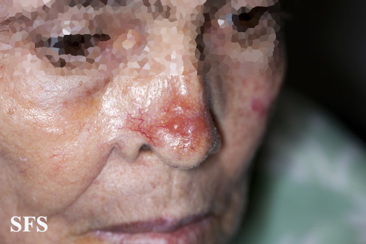 leishmaniasis-cutaneous leishmaniasis(leishmaniasis-cutaneous_leishmaniasis11.jpg)