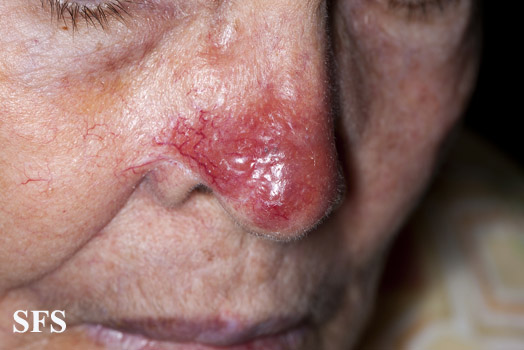 leishmaniasis-cutaneous leishmaniasis(leishmaniasis-cutaneous_leishmaniasis14.jpg)