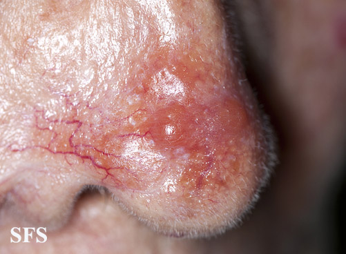 leishmaniasis-cutaneous leishmaniasis(leishmaniasis-cutaneous_leishmaniasis13.jpg)