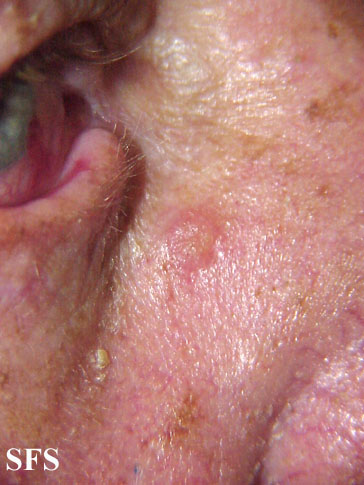 inverted follicular keratosis