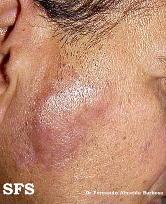 lymphocytoma cutis