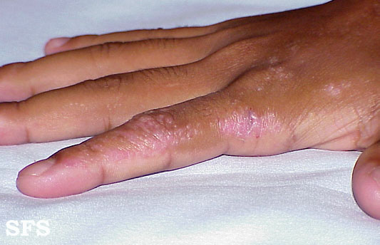 inflammatory linear verrucous epidermal naevi
