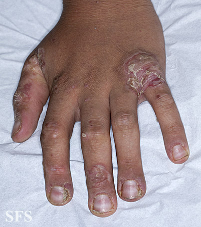 zinc deficiency(zinc_deficiency13.jpg)