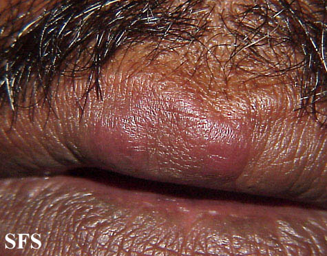 lymphocytic infiltration of the skin(lymphocytic_infiltration_of_the_skin5.jpg)