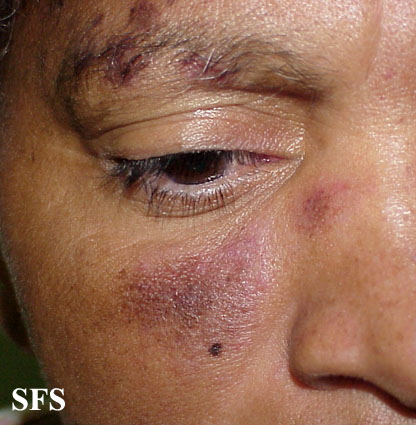 lupus erythematosus-subacute cutaneous lupus erythematosus(lupus_erythematosus-subacute_cutaneous_lupus_erythematosus7.jpg)