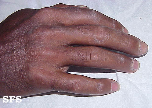 mixed connective tissue disease