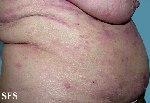 mycosis fungoides(mycosis_fungoides7.jpg)