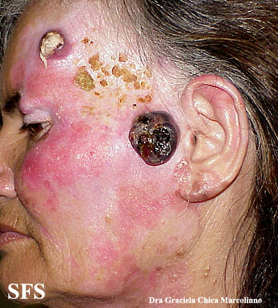 amelanotic lentigo maligna and melanoma(amelanotic_lentigo_maligna_and_melanoma2.jpg)