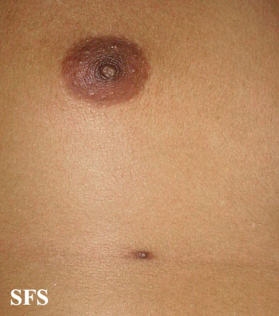 nipples supernumerary(nipples_supernumerary12.jpg)