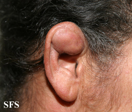 pseudocyst of the ear(pseudocyst_of_the_ear1.jpg)