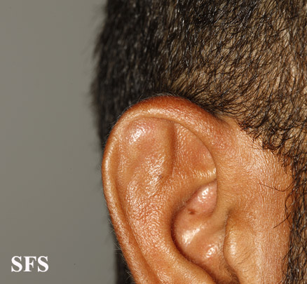 pseudocyst of the ear(pseudocyst_of_the_ear7.jpg)