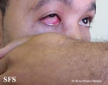 gonorrhea-gonococal conjunctivitis